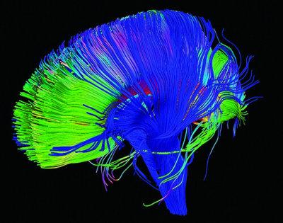 effect of trauma on brain