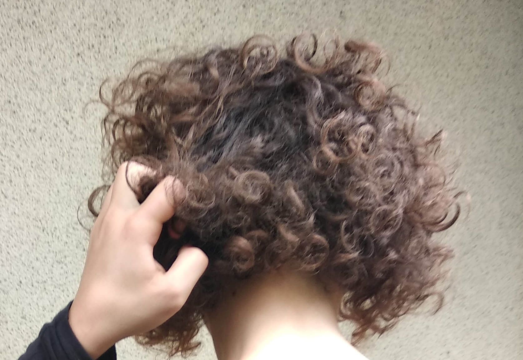 What is Trichotillomania? Why Hair Pulling is Serious ...